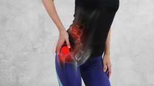 I Have Hip Pain What Should I Do? What Causes Impingement Of The Hip?